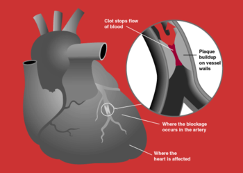 myocardial infarction, Muscles